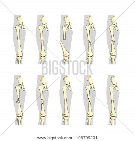 Types Bone Fractures Vector & Photo (Free Trial) | Bigstock