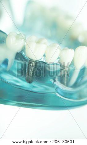 Dentsts Dental Tooth Implant