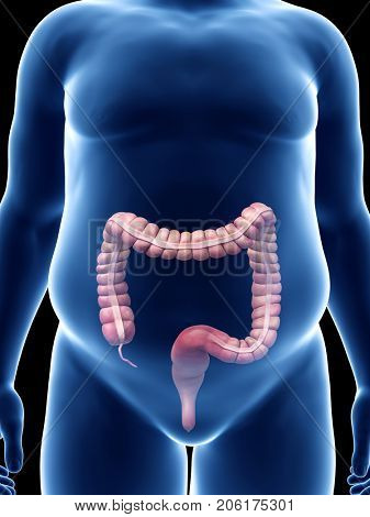 medically accurate 3d rendering of an obese guys colon