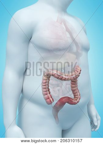3d rendered medically accurate illustration of an overweight mans colon