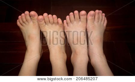 Healthy Sibling's Bare Feet Side by Side