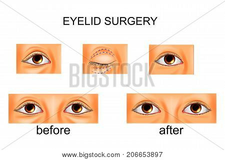 vector illustration of eyelid surgery plastic surgery