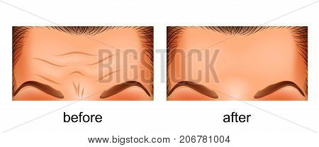 vector illustration of a rejuvenation of the skin of the forehead. before and after