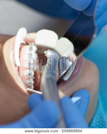 Dental laser used on a patient on soft and hard tissue. Dental health, modern technology and oral hygiene concept.