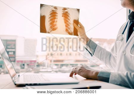 Male doctor holding x-ray film and analyze result.
