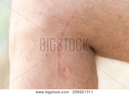 scars on his leg . Photo of abstract background
