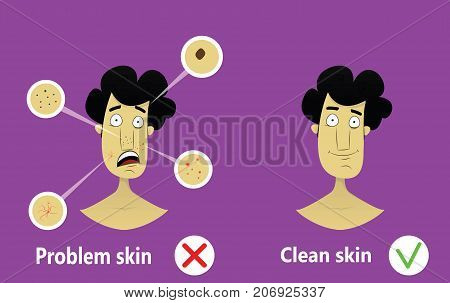 Young man face with skin problem. Cosmetical infographics. Facial care concept. Face care for men. Vector