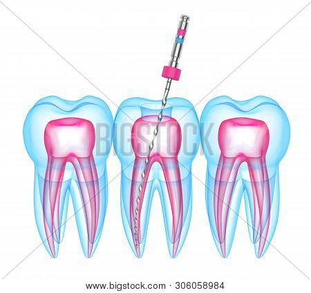 3D Render Of Teeth With Endodontic File Over White Background