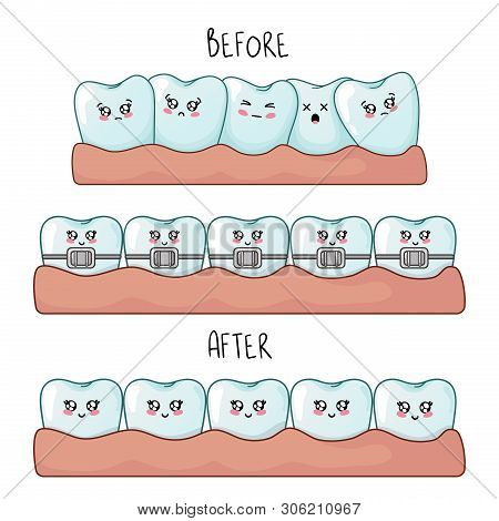 Healthy Kawaii Teeth Are Together And Dental Braces, Cute Cartoon Characters, Concept Of Dentistry A