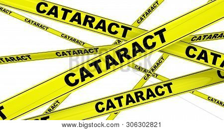 Cataract. Yellow Warning Tapes With Black Words Cataract (is A Clouding Of The Lens In The Eye Which
