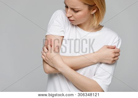 Close Up Of Young Woman Scratching The Itch On Her Hand, Isolated On Grey Background. Dry Skin, Anim