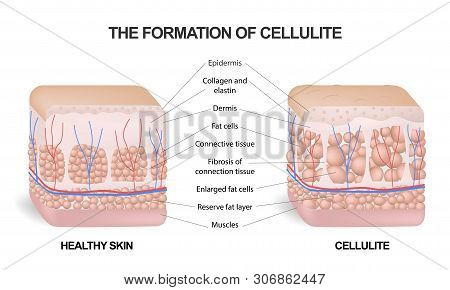 The Formation Of Cellulite. Cellulite Occurs In Most Females And Rarely In Males. Vector Diagram. Co