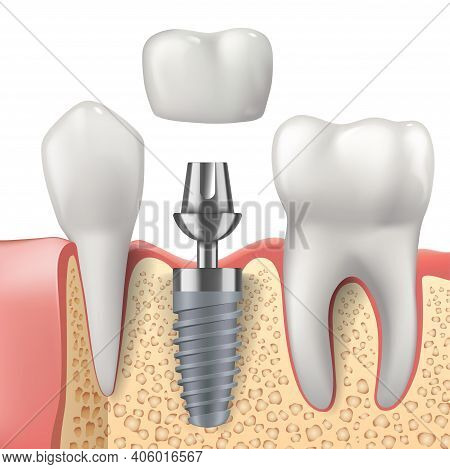 Teeth And Dental Implant Realistic Vector Design Of Dentistry. 3d Tooth, Denture Crown, Jaw Bones An