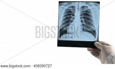 X-ray Of A Human Lung Is Isolated On A White Background, The Doctor Analyzes The X-ray Of The Lungs,