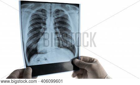 X-ray Of Human Lungs Isolated On White Background. The Doctor Holds An X-ray Of The Lungs In His Han