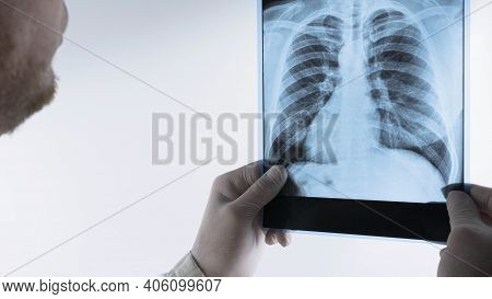 Human Lungs X-ray On A White Background, The Doctor Analyzes An X-ray Of The Lungs In The Clinic.pne