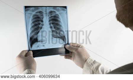A Doctor With A Beard Looks At An X-ray Of A Person's Lungs, A Medical Worker Analyzes An X-ray Of A