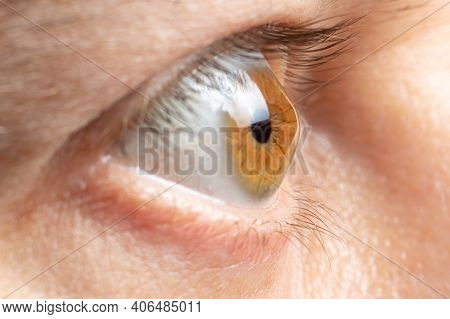 Keratoconus Of Eye, 4th Degree. Contortion Of The Cornea In The Form Of A Cone, Deterioration Of Vis