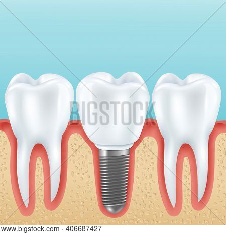 Dental Prosthetics Realistic Vector Illustration With Healthy Teeth And Denture Crown Implanted With