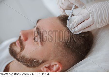 Aesthetician Giving Hairloss Treatment Injections Into Scalp Of Male Client