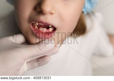 A Dentist Examines The Baby Teeth In The Girl. The Loss Of Milk Teeth. The Girl Has No Upper Teeth.