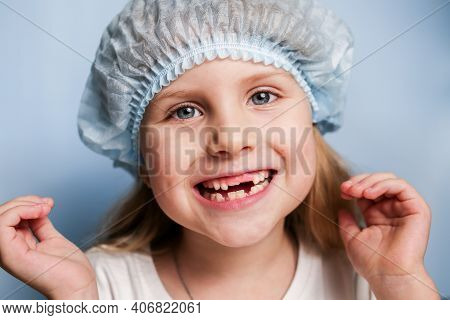 A Little Girl At The Dentist Shows A Toothless Mouth. Replacement Of Temporary Teeth With Permanent
