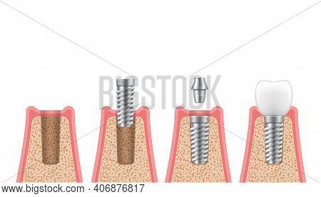 Dental Implantation Process Steps, Timeline Realistic Set. Placement Implant, Abutment, Crown.