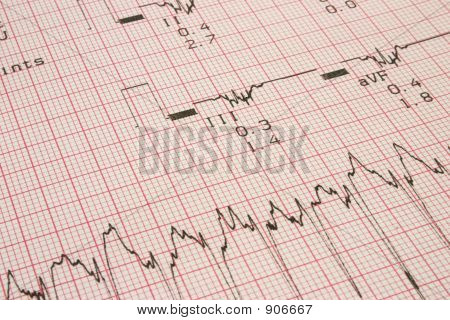 cardiological test results photo contains no protected material poster