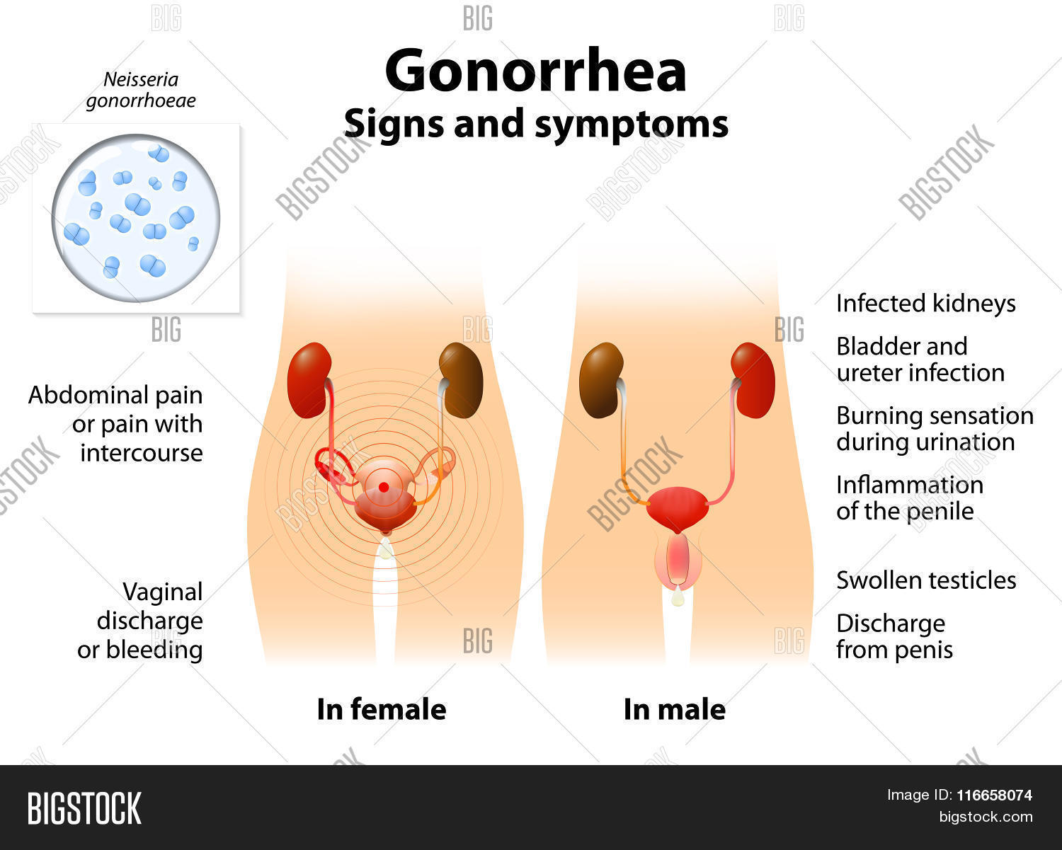 Gonorrhea Gonnococcal Vector Photo Free Trial Bigstock