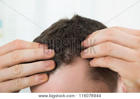 Man Checking Hairline At Home