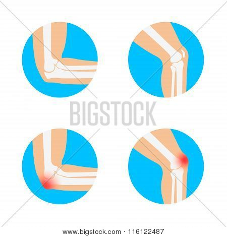 Knee And Elbow Vector Illustration.