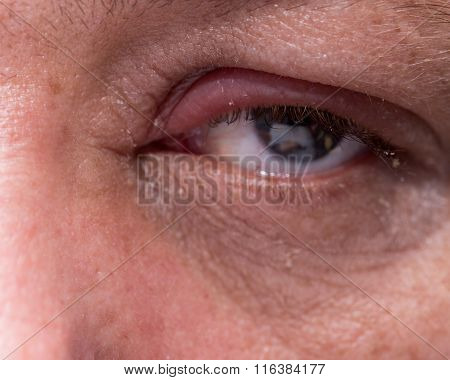 Close Up Of Infected Eye