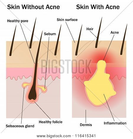 Skin With And Without Acne