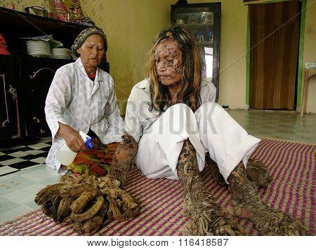 The 'Tree Man of Indonesia', Dede Koswara