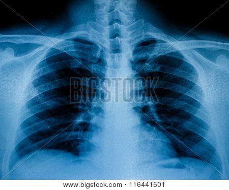 X-ray Scan Human