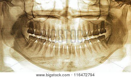 X-ray Scan Human For Teeth