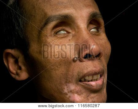 A blind, middle-aged Indonesian man poses for his portrait in Yogyakarta, Java