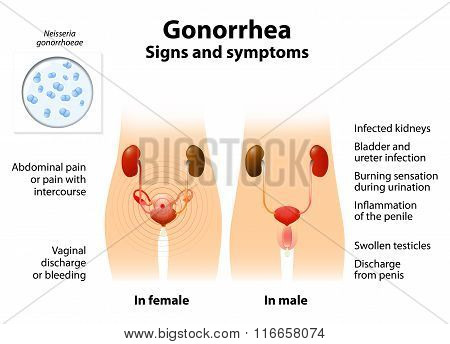 Gonorrhea Or Gonnococcal Infection