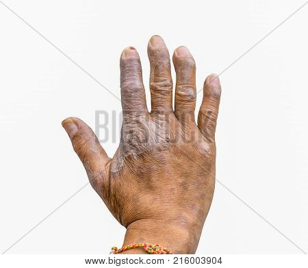Closeup of psoriasis on the hands of farmers isolated on white background dermatology skin disease. Psoriasis fingers deformity.