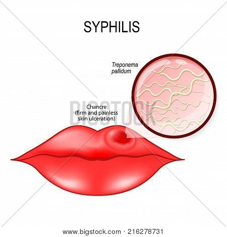 Syphilis. Human lips with chancre (a firm painless non-itchy skin ulceration) and Treponema pallidum (spirochaete bacterium cause treponemal diseases syphilis bejel pinta and yaws). Vector diagram for medical use