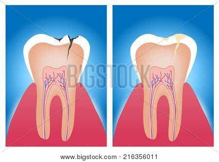 teeth . vector illustration of an amalgam filling before and after teeth