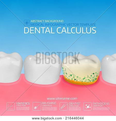 Dental calculus with bacteria. Colorful vector illustration. Infographic template.