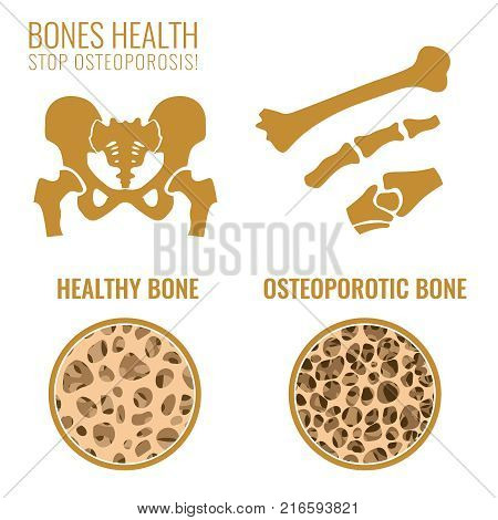 Osteoporosis stages image. Osteoporosis bone and healthy bone in comparison isolated on a white background. Vector illustration useful for medical, educational or scientific graphic design.