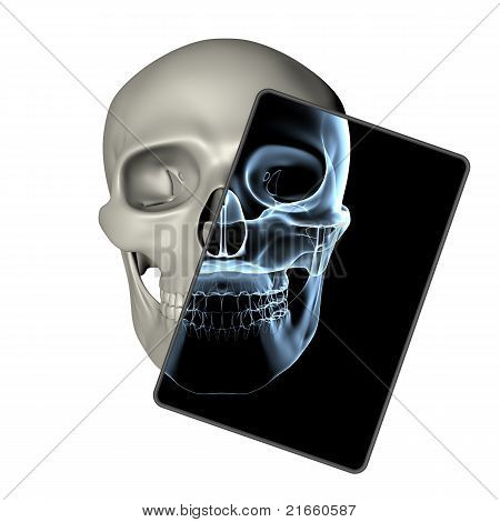 Human Skull - X-ray Frame Front View