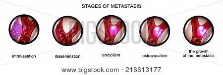vector illustration of the stage of metastasis of cancer cells