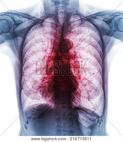 Pulmonary Tuberculosis . Film Chest X-ray Show Interstitial Infiltrate Both Lung Due To Mycobacteriu
