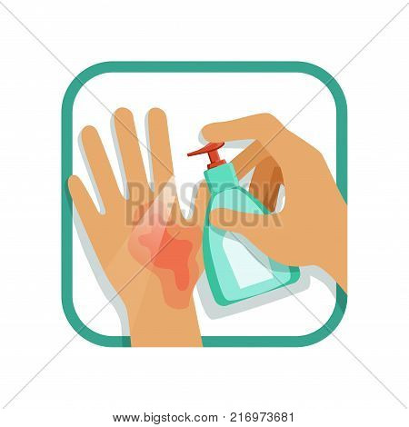Treating hand injury with antiseptic. Home care treatment. First-degree burns concept. Vector illustration in flat style isolated on white background. Design element for infographic, poster, brochure. poster