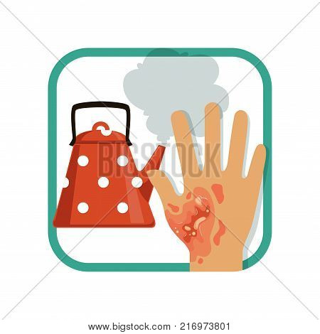Illustration showing third degree burn of hand. Severe damage hand skin from hot kettle. Thermal injury concept. Vector in flat style isolated on white. Design element for card, brochure or poster.