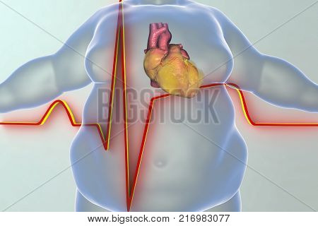 Heart disease in a person with obesity, conceptual image. 3D illustration showing increased weight man with obese heart and ECG of myocardial infarction