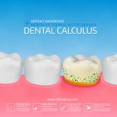 Dental calculus with bacteria. Colorful vector illustration. Infographic template. poster